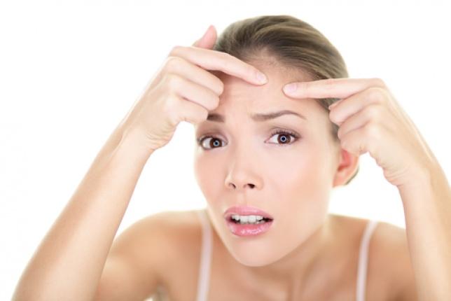 ¿Eres víctima del acné adulto?
