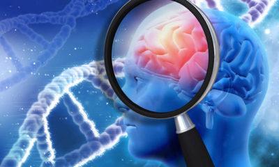 Hallan método para combatir el Alzheimer